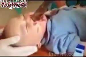 Baby stabbed in face